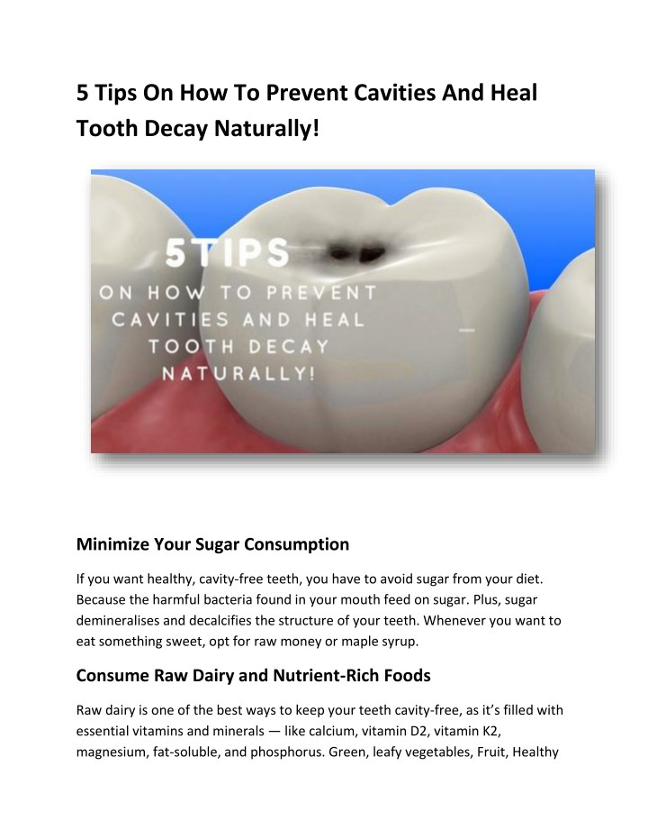 5 tips on how to prevent cavities and heal tooth