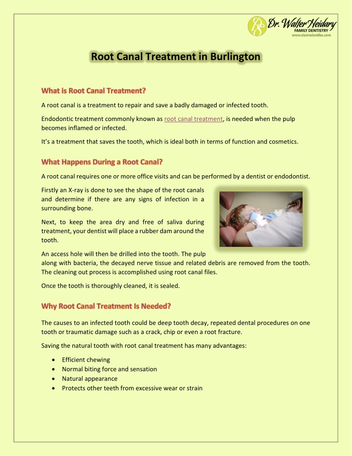 root canal treatment in burlington n.