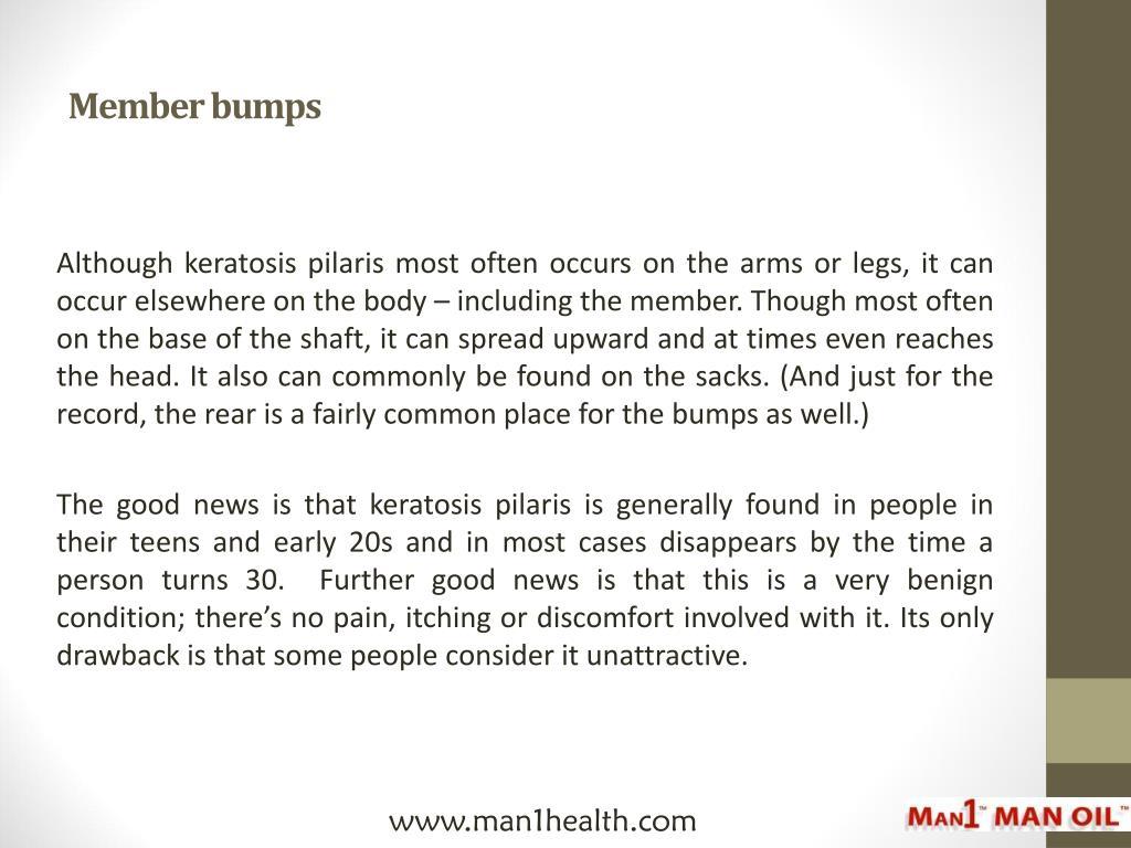 PPT - Member Bumps and Keratosis Pilaris PowerPoint Presentation