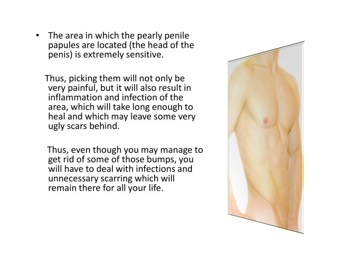 what are penile papules on head