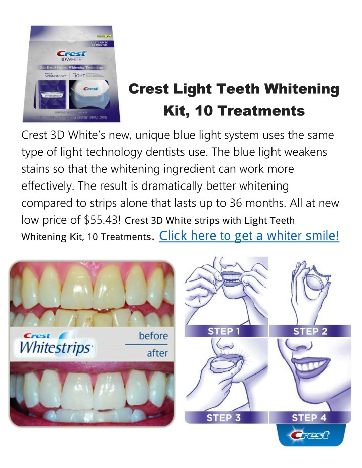 Ppt Crest Light Teeth Whitening Kit Powerpoint Presentation