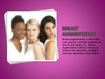 breast augmentation is one of the most popular
