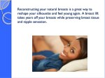 reconstructing your natural breasts is a great