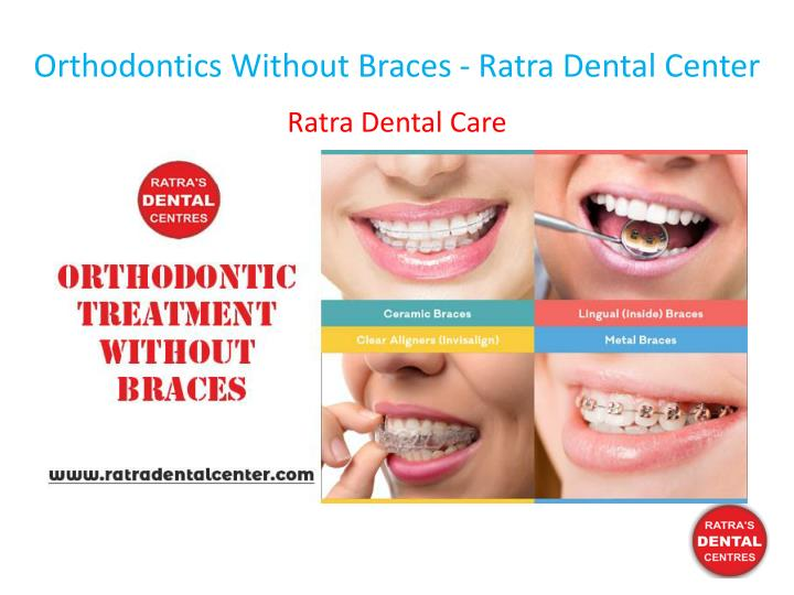 orthodontics without braces ratra dental center n.