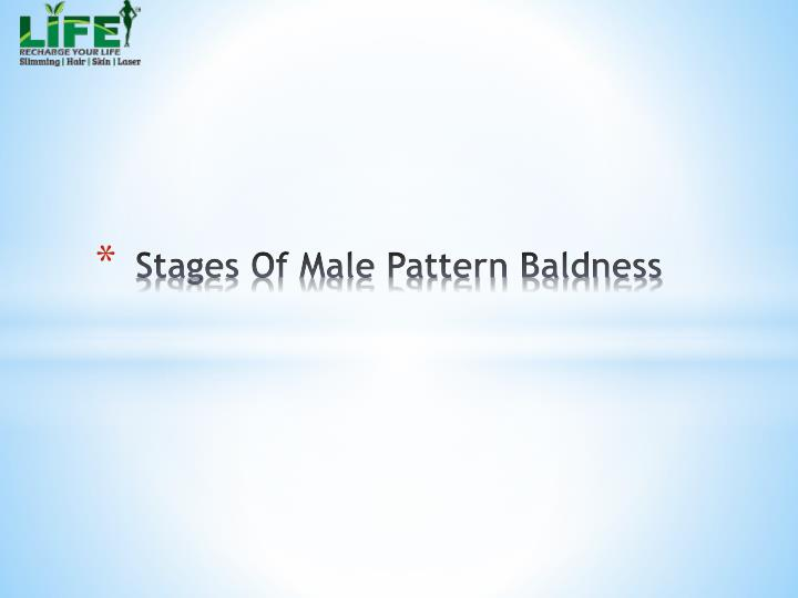 stages of male pattern baldness n.