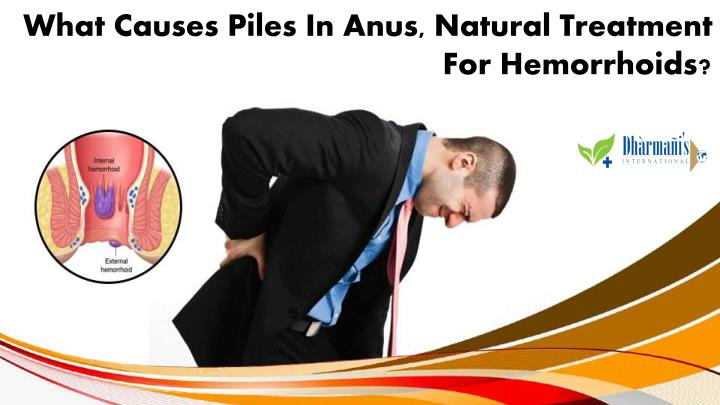 what causes piles in anus natural treatment n.