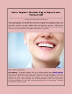 dental implant the best way to replace your