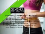 smartlipo laser lipolysis technique