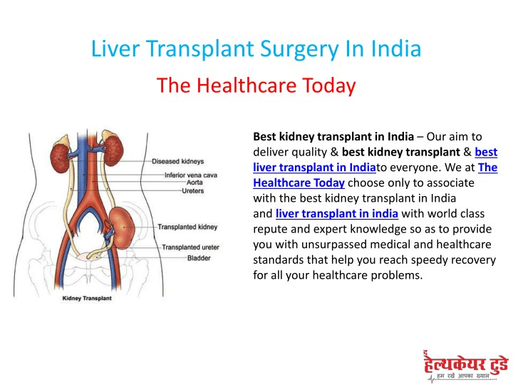 liver transplant surgery in india n.