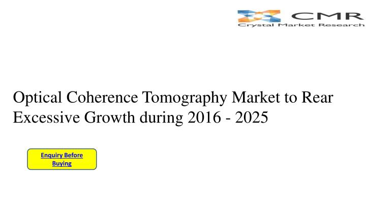 optical coherence tomography market to rear excessive growth during 2016 2025 n.