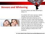 veneers and whitening