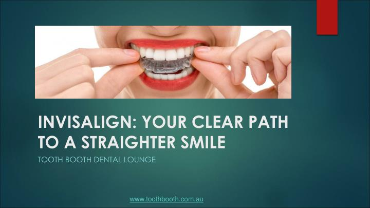 invisalign your clear path to a straighter smile n.