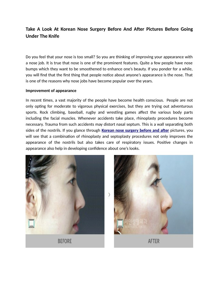 take a look at korean nose surgery before n.