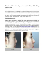 take a look at korean nose surgery before