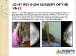joint revision surgery of the knee