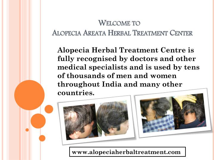 welcome to alopecia areata herbal treatment center n.
