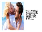 cure vitiligo permanently and safely within