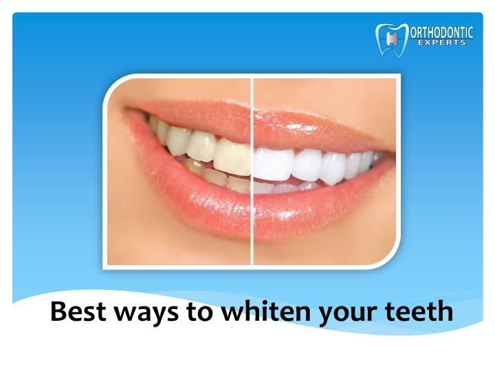 best ways to whiten your teeth n.