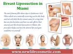 breast liposuction in miami
