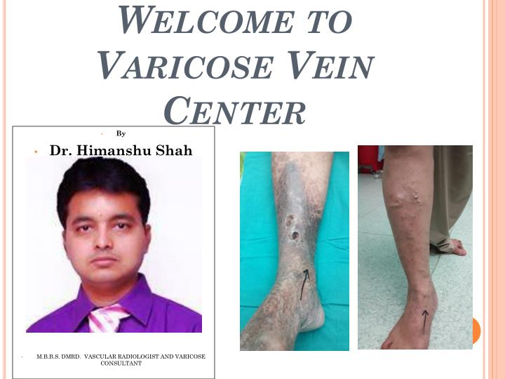 welcome to varicose vein center n.