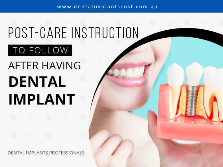 post care instruction to follow after having dental implant n.