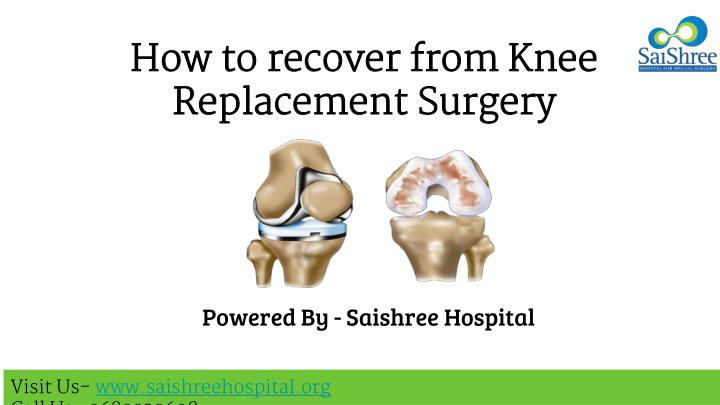 how to recover from knee replacement surgery n.