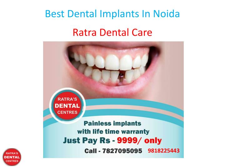 best dental implants in noida n.