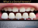 what is a dental veneers