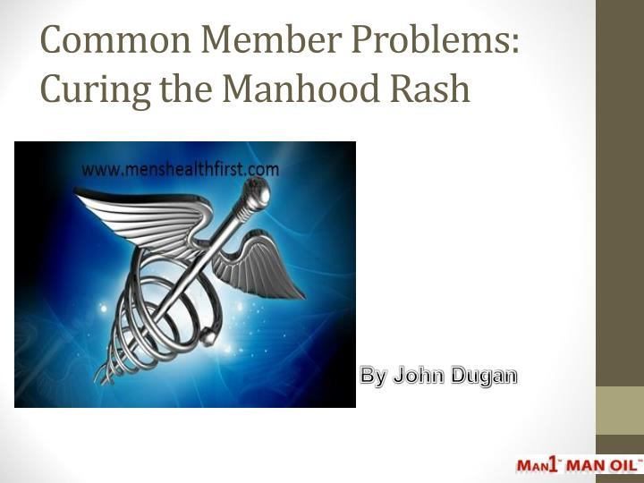 common member problems curing the manhood rash n.