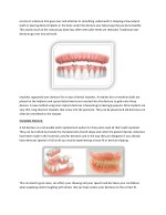 construct a denture that goes over and attaches