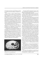 hepatic and pulmonary hydatidosis in children 1