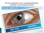 dry eye syndrome can be managed effectively resulting in much greater comfort