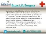 brow lift surgery 1