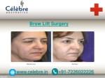 brow lift surgery 3