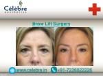 brow lift surgery 4