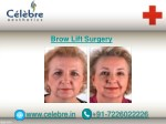 hair transplant in surat 2