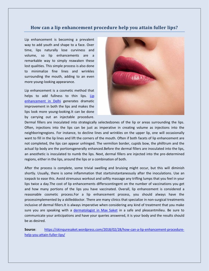 how can a lip enhancement procedure help n.