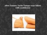 after tummy tucks tampa wear bikini with