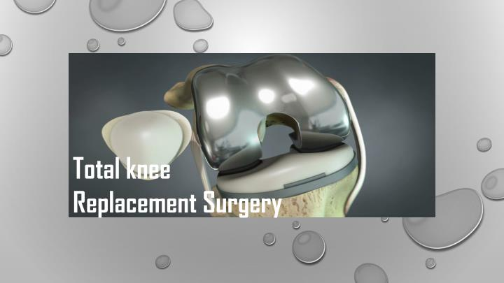 total knee replacement surgery n.