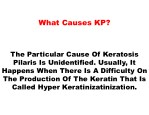 what causes kp