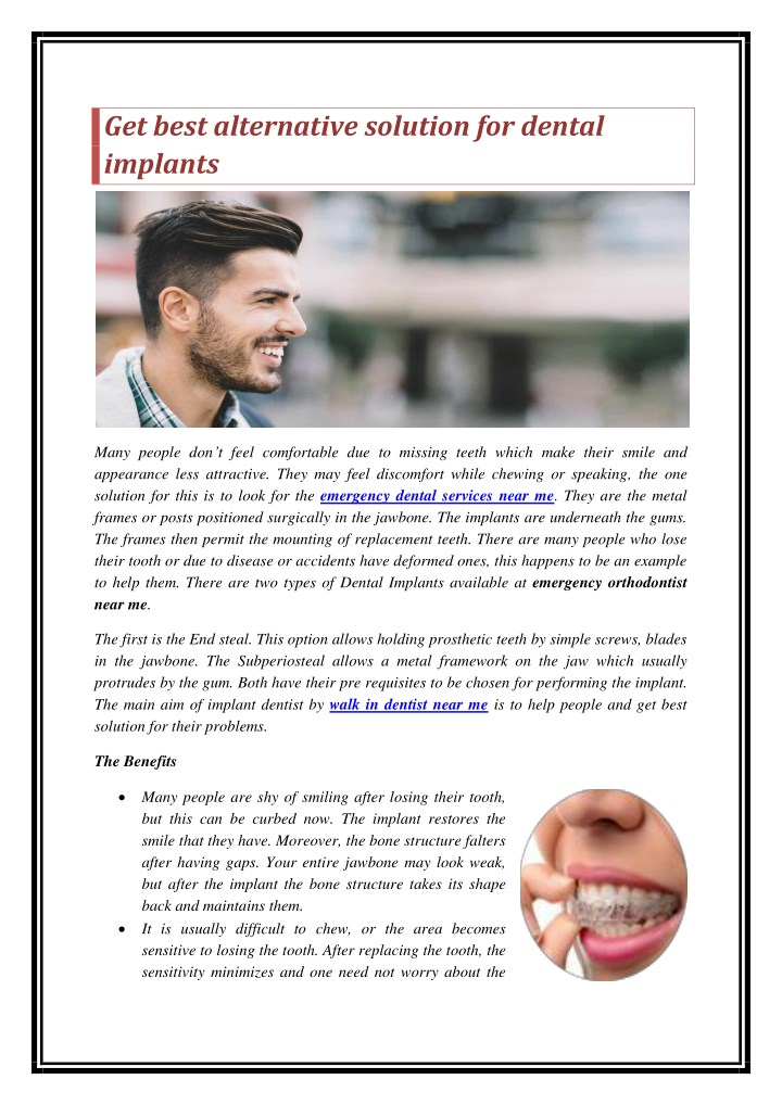 get best alternative solution for dental implants n.
