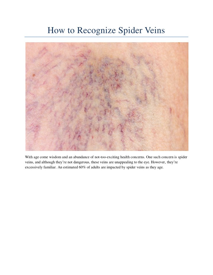 how to recognize spider veins n.