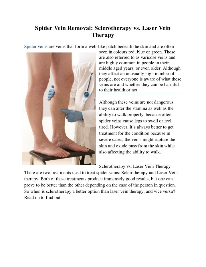 spider vein removal sclerotherapy vs laser vein n.