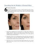 smoothing out the wrinkles of dermal fillers 6