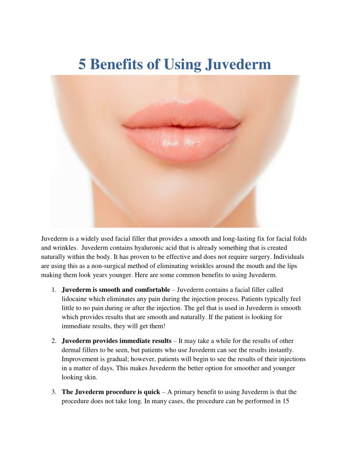 5 benefits of using juvederm n.