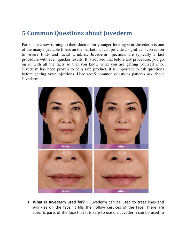 5 common questions about juvederm n.