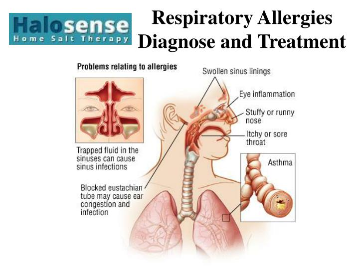 respiratory allergies diagnose and treatment n.