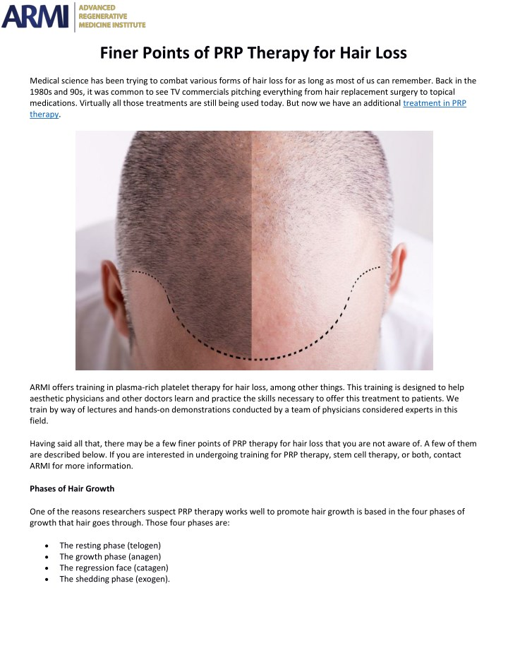 finer points of prp therapy for hair loss n.