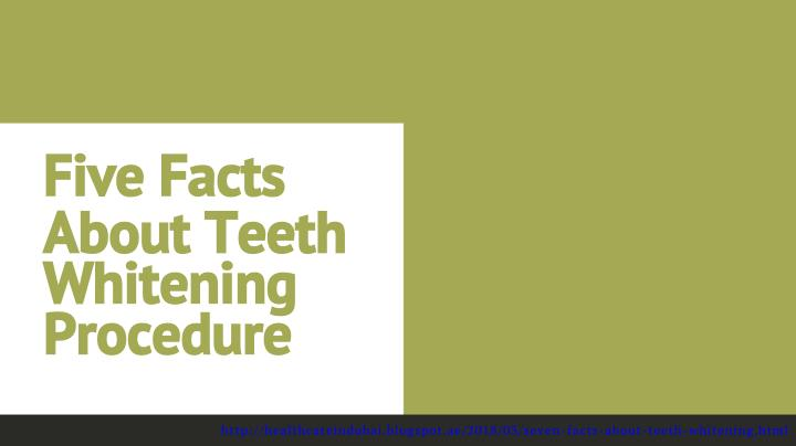 five facts about teeth whitening procedure n.