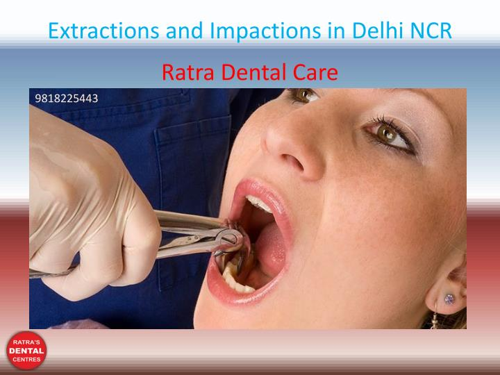 extractions and impactions in delhi ncr n.